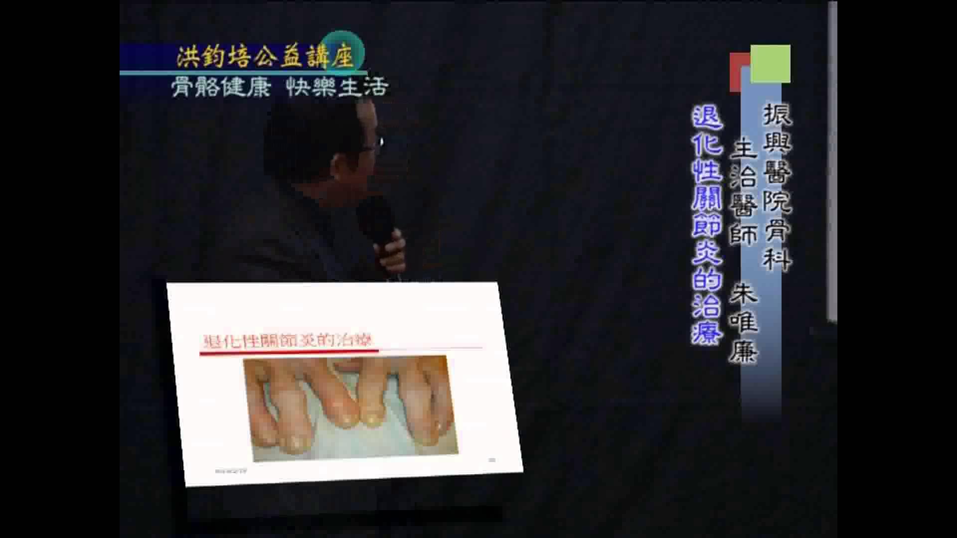 振興醫院骨科主治醫師朱唯廉演講:骨骼健康、快樂生活(四)